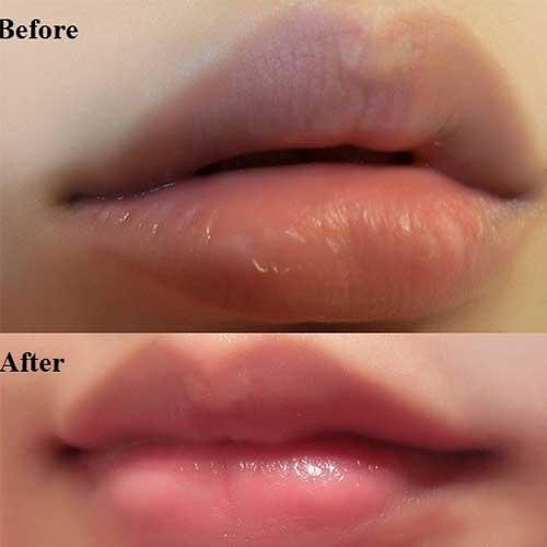 Son Tẩy tế bào chết môi Beauty Treats Lip Scrub - Mỹ phẩm ĐẸP XINH